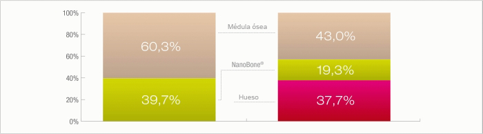 nanobone tecnologia 1