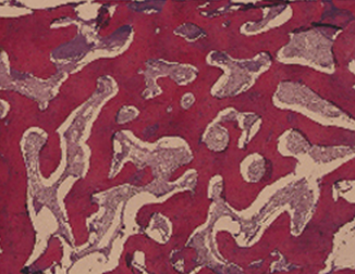 nanobone biomaterial