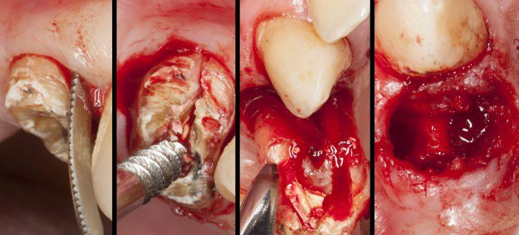 ¿Cómo prevenir la reabsorción ósea después de una extracción?
