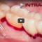 Tratamiento de mucositis con desconatimandor tisular HybenX